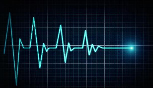 arresto cardiaco
