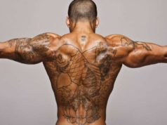 Rimuovere tatuaggio