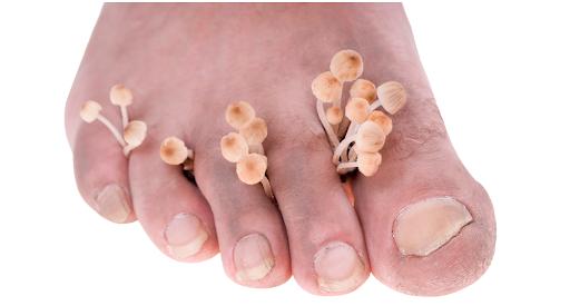 Funghi unghie piedi